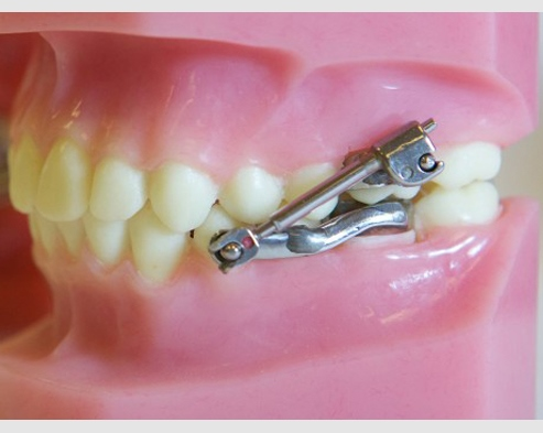 Herbst Appliance Orthodontist Chico Ca Edward C Bruno D D S