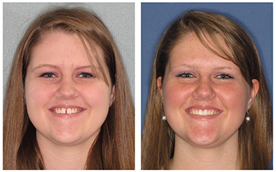 before & after invisalign teen